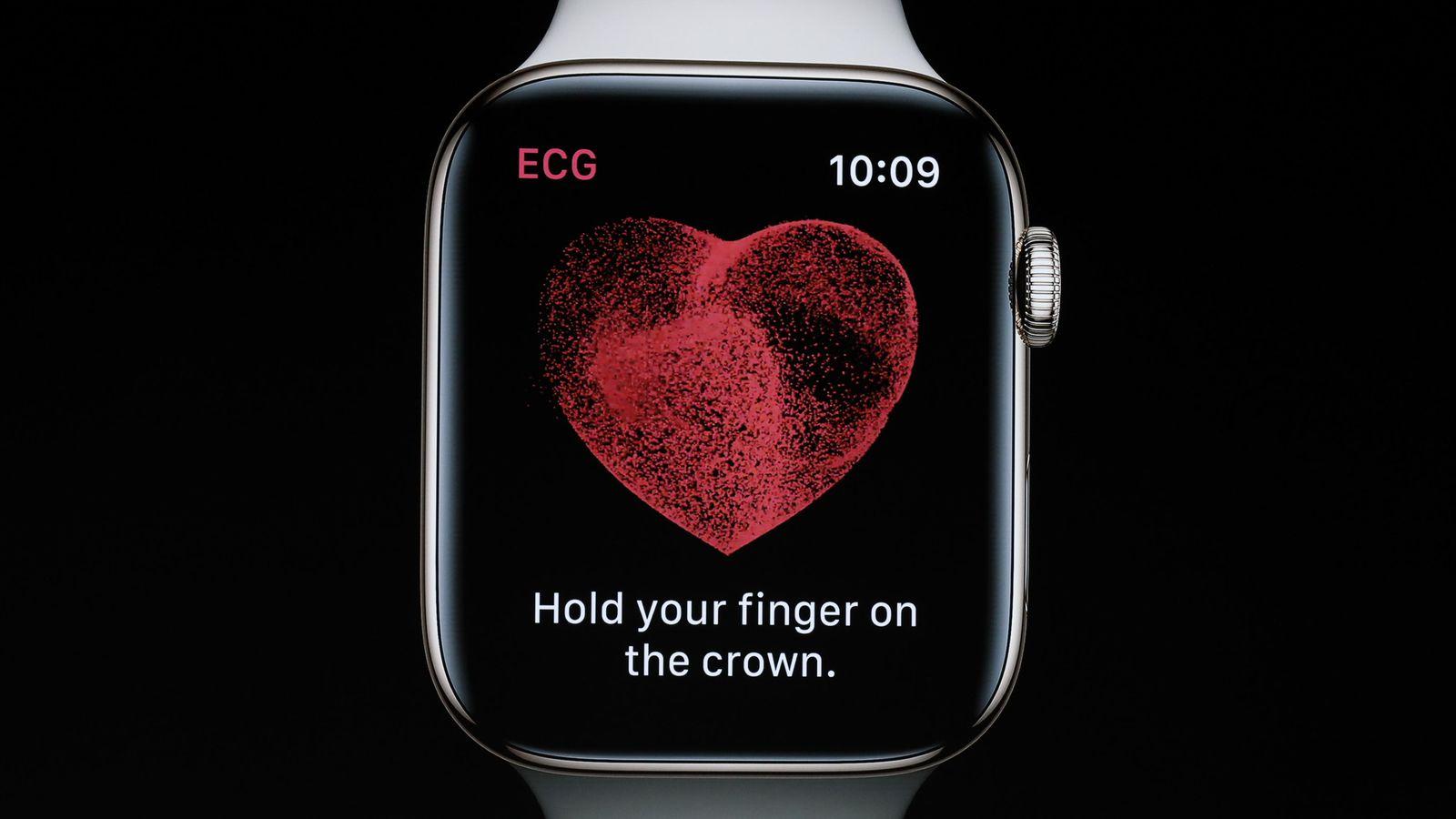ECG de Apple Watch salva la vida a un usuario