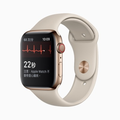 ECG de Apple Watch salva la vida a un usuario